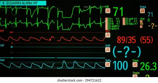 Cardiac monitor in operating room