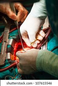 Cardiac surgery with cardiopulmonary bypass. Image with shallow DOF.