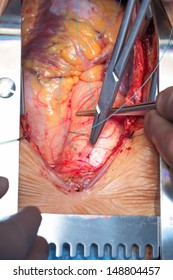 Cardiac surgery. Work on the aorta. Documentary photography for professionals.