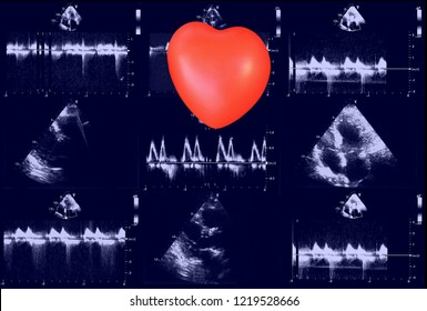Cardiac ultrasound images and small heart . Screen of echo-cardiography machine. Doppler echo