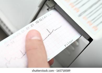 cardiogram and cardiograph