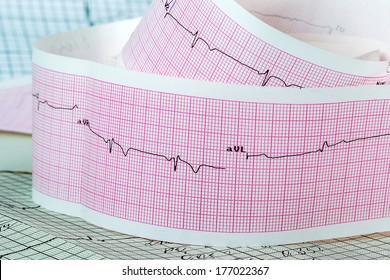 Cardiogram on the pink grid. The concept for strokes and heart attacks