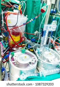 Cardiopulmonary bypass,Close up Heart lung machine for heart surgery In advanced operating room with lots of equipment, patient and working surgical specialists.