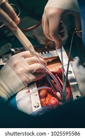 Cardiovascular surgery doctor in surgery center for interventions with instruments in surgeon operation electrosurgery with thoracotomy microsurgery doing minimal invasive open heart surgery