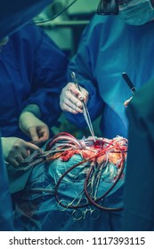 cardiovascular surgery doctor in surgery center for interventions needle holder clamps and in surgeon operation electrosurgery with thoracotomy microsurgery doing minimal invasive open heart surgery