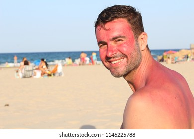 Careless man showing showing redness at the beach
