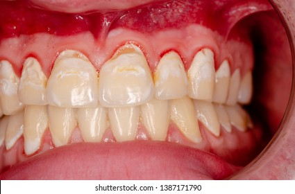 caries and gingivitis as a consequence of abuse of sugar containing beverage of a teenager