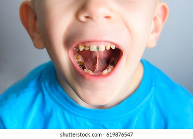 Caries on the teeth of a young child