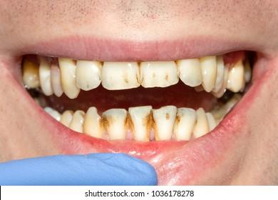 Bad Teeth Images, Stock Photos & Vectors | Shutterstock