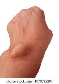 Carpal ganglion,Non-fatal tumors. The most common of the hands and wrists.Inside the cyst is rhythmic water contained.The wall of the cyst is a lining or ligaments and contact with wrist.