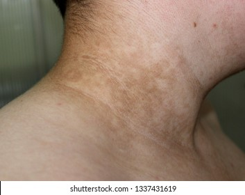 A case of acanthosis nigricans in a male with diabetes.