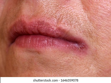A case of angular cheilitis caused by candida infection in a female with diabetes