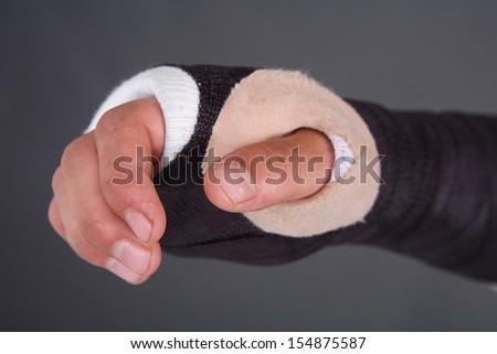 Cast On Broken Hand Stockfoto Jetzt Bearbeiten 154875587