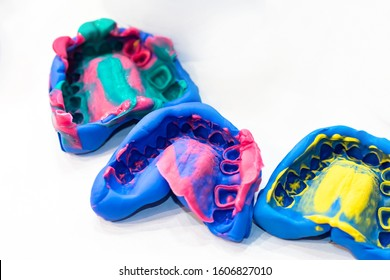 Casts of the jaw. Multi-colored plaster jaws. Career - dental technician. Anatomical teeth prints. Anatomical jaw of human. Preparation for the manufacture of dentures. Process of creating dentures.