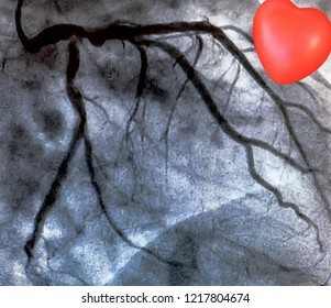 Catheterization and small red heart. Cardiac ventriculography is a medical imaging test used to determine a patient cardiac function in the right or left ventricle