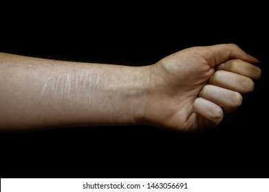 A Caucasian arm that has a clenched fist and cutting scars
