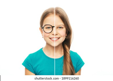 Caucasian girl with eyeglasses and without glasses. Choose contact lenses for vision correction. Photo collage cut in half to select contact lenses or eyeglasses