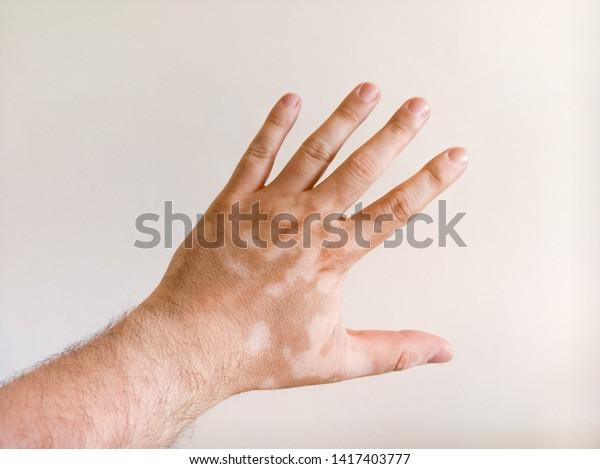 Caucasian Mans Hand Covered White Vitiligo People Stock Image 1417403777