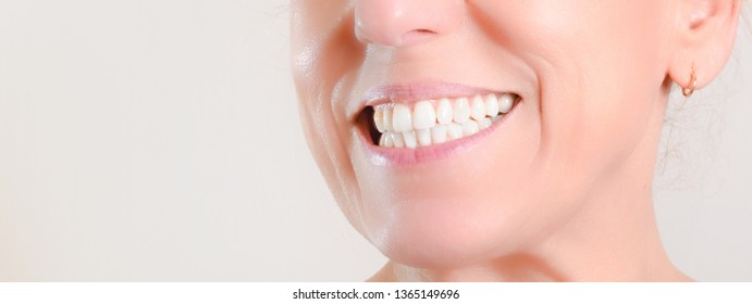 Caucasian mature woman with hoop earrings showing perfect natural white teeth on the side