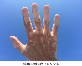 A caucasian right hand with vitiligo is held up palm side away with a blue sky background. Some parts of the skin are tanned and others are not, demonstrating the symptoms of vitiligo.