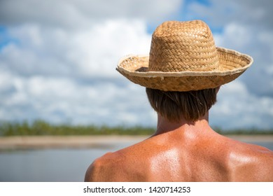 Caucasian tourist wearing a straw sun hat looking out at a bright palm-lined island beach scene, skin burning in hot tropical sun