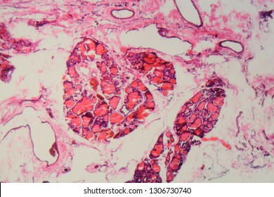 Cells of a human thyroid gland with goiter caused by deficiency of iodine under a microscope.