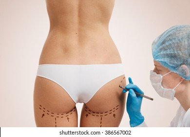Cellulite cut out. Conceptual image, plastic surgery concept. Beautician touch and draw correction lines on woman. Before plastic surgery operetion. Isolated