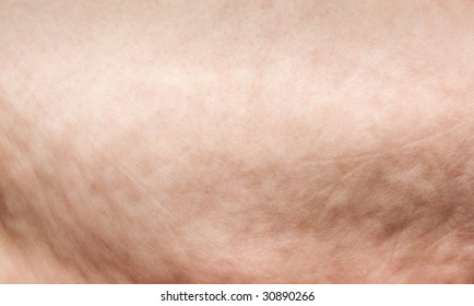 cellulite extreme closeup on mature woman skin