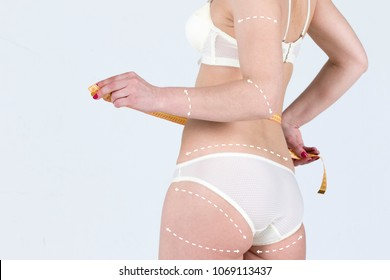 Cellulite fat removal scheme body. White markings arrow a woman. Plastic cosmetology surgery.