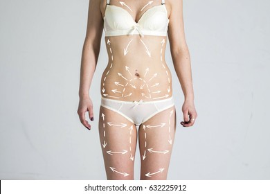 Cellulite fat removal scheme body. White markings arrow young a woman. Surgery cosmetic.