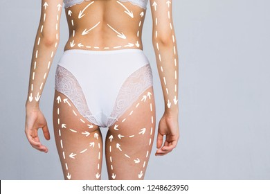 Cellulite fat removal scheme on body. Plastic surgery white markings arrow woman with meter.