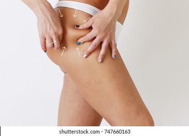 Cellulite fat removal scheme on skin. White markings arrow on body woman