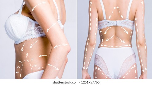 Cellulite fat removal scheme. White markings arrow on body woman. Set image, cosmetic surgery.