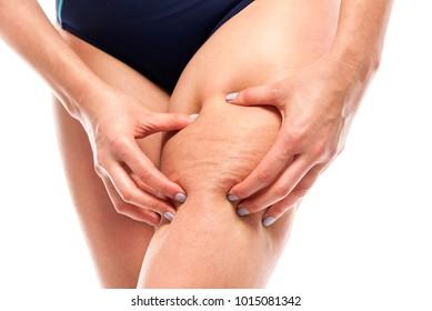 Cellulite on female legs. Female silhouette on white background.