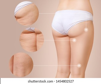 Cellulite problem concept. Female buttocks with magnifying circles shows before and after treatment skin.