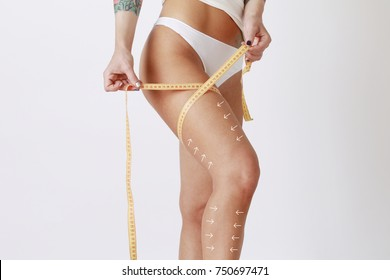 Cellulite removal arrow scheme. White markings on woman body legs