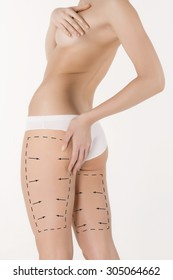 Cellulite removal plan. The black markings on young woman body preparing for plastic surgery. Concept of body correction