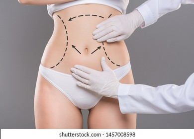 Cellulite removal plan. Doctor hands in gloves marking lines on young woman body