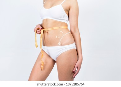 Cellulite removal scheme on body girl. White arrows markings on belly young girl. Plastic surgery concept.