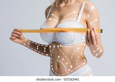 Cellulite removal scheme on body. White markings arrow young woman meter. Cosmetic breast surgery.