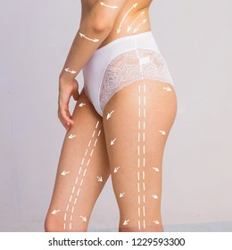 Cellulite removal scheme. White markings on body woman smooth skin on a white background.