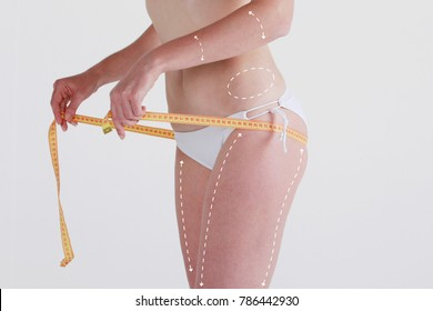 Cellulite removal scheme. White markings on girl body smooth skin. Plastic surgery.