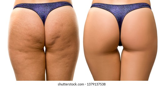 cellulite and strechmarks on woman's buttocks before and after treatment on white background