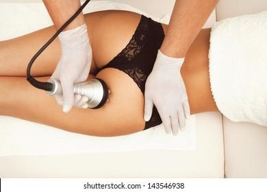 cellulite treatment buttocks area indoor shot