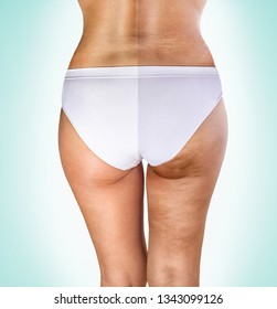 cellulite treatment, female buttocks before and after treatment