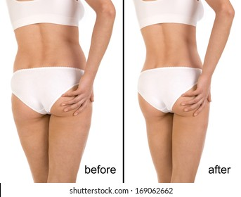 Cellulite Before And After Images Stock Photos Vectors Shutterstock