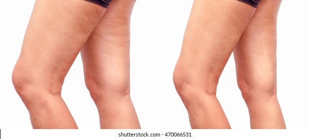 Cellulite women. Figure of a young girl before and after.