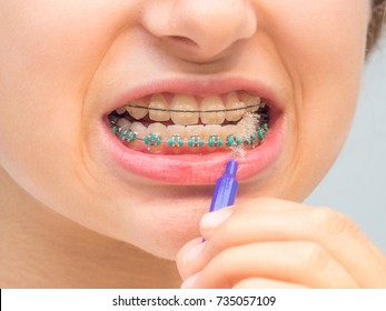 Ceramic braces in the child mouth