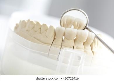 Ceramic bridge on plaster model