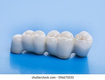 ceramic crowns - dental laboratory